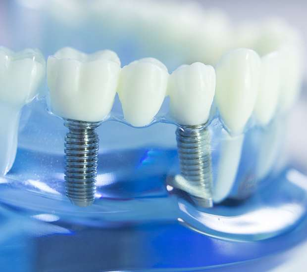 Redwood City Dental Implants